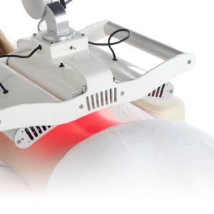 Profilbillede -Laserbehandling